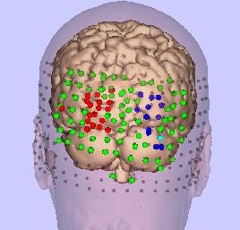 A three-dimensional model of the brain and skin, with areas of TMS activation shown in red and blue.